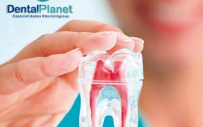 La endodoncia es uno de los tratamientos dentales más habituales en odontología.